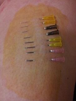 eight needles